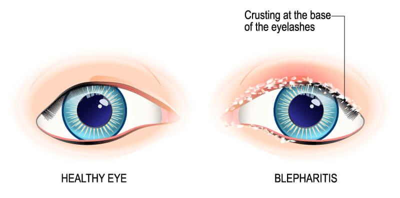 Blepheritis chart