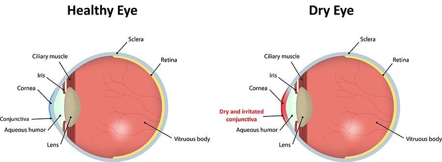 Dry Eyes chart